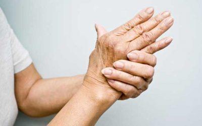 Recomendaciones sobre la artritis
